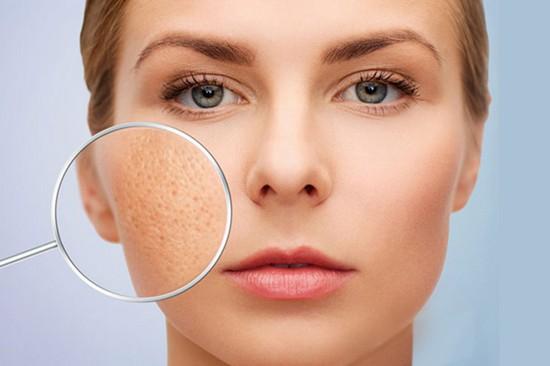 gợi ý các sản phẩm skin care cho các nàng có lỗ chân lông to