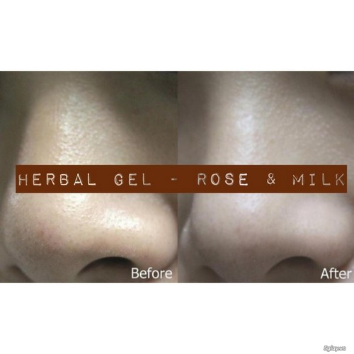 Combo Gel Hút Mụn Rose & Milk và Herbal Gel MWhite