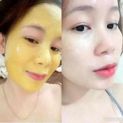 Mặt nạ Collagen Tươi Nhân Sâm Vàng 24K Dưỡng Trắng Da Và Phục Hồi Da Ngân Bình