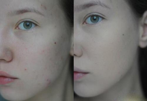 Sữa Rửa Mặt Innisfree Bija Trouble Facial Foam 150 ml