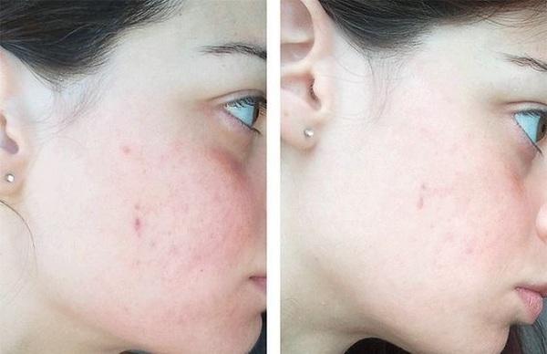Lotion Trị Mụn Meishoku Bigansui Skin Lotion 90ml