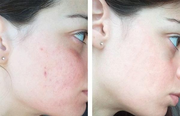 Sữa Rửa Mặt Ngăn Ngừa Mụn Meishoku Acne Bigansui Facial Wash 80g